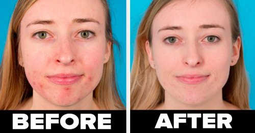 34 Skincare Basics You'll Probably Wish You Had Learned Sooner