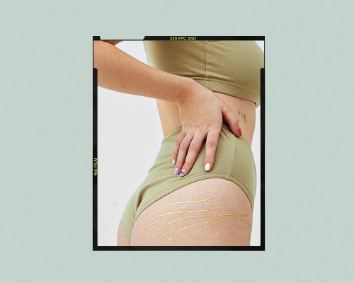 Do You Have Chronic Yeast Infections? This May Be Why