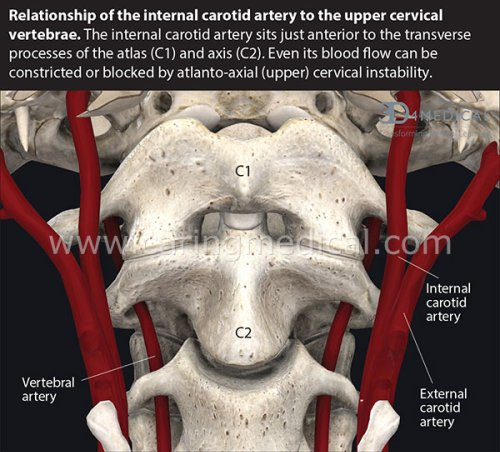 How cervical spine instability disrupts blood flow into the brain and causes many neurological problems – Caring Medical Florida