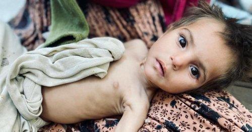 Taliban blames U.S. as 1 million Afghan kids face death by starvation