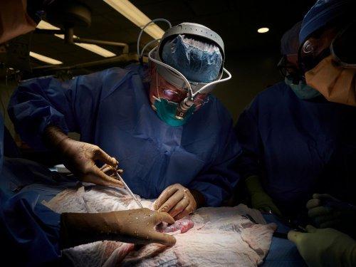 Etats-Unis: Succès d'un essai de transplantation du rein d'un porc à un humain