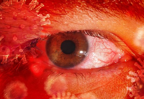 Ophthalmic Presentations of COVID-19
