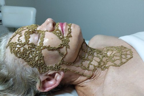 A New Beauty Treatment Uses Acupunture and Magnets to Create Healthy Skin
