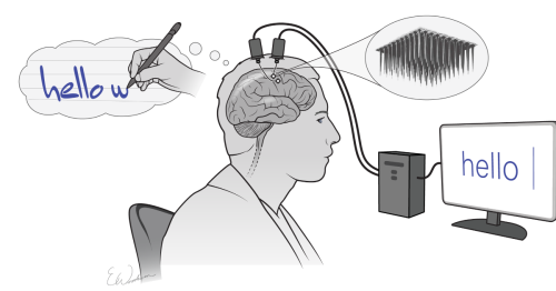 Brain implant turns thoughts into text as fast as typing on a smartphone