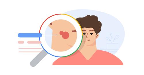 Google will now help you identify that suspicious mole or rash