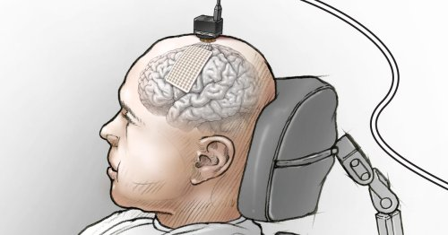 Brain implant turns thoughts into words to help paralyzed man 'speak' again