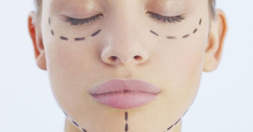 Plastic surgery images and invoices leak from unsecured database