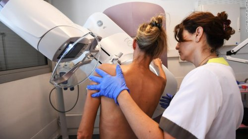 Mammograms pick up swelling related to Covid-19 vaccine
