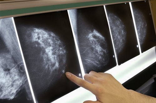 Third of breast cancer patients treated unnecessarily, study says | CNN