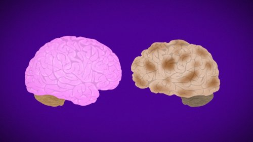 Experimental Alzheimer's drug could slow cognitive decline in patients, early results suggest