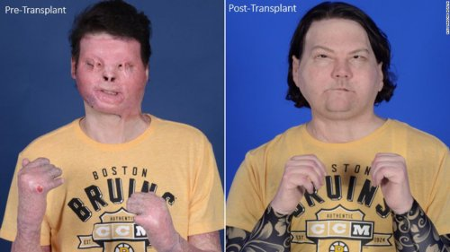 World's first face and hands transplant gives New Jersey man a second chance at life