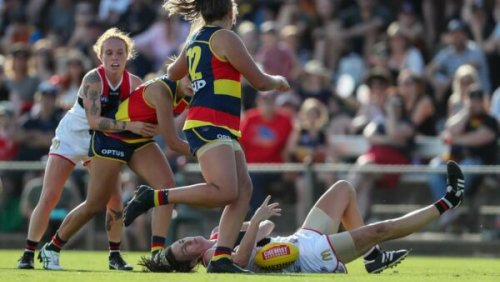 We need to talk about women and concussion