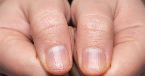 People urged to do home finger test to show signs of lung cancer