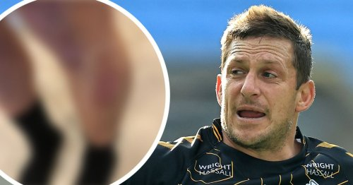 Gopperth shares '4G' wounds from Saracens game