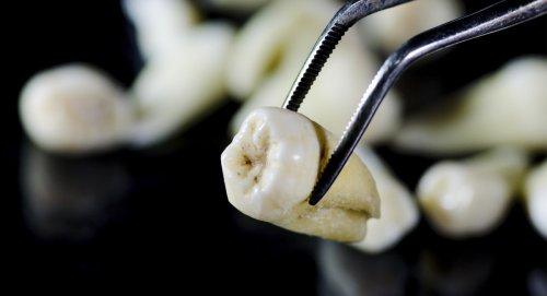 I Buy Human Teeth: 4 Realities Of A Weird Black Market