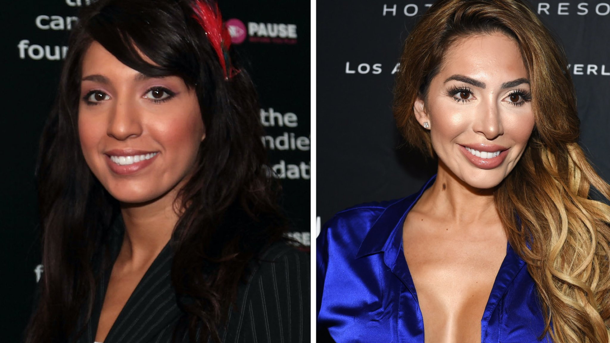 See the Before & After Pics of These Reality Star Moms' Plastic Surgery