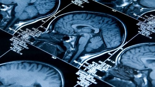 More than 80% of people hospitalized with COVID-19 experience neurological complications: study