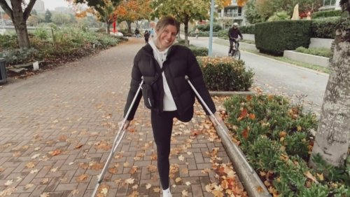 Saanich, B.C. woman inspires others with viral video after life-altering surgery
