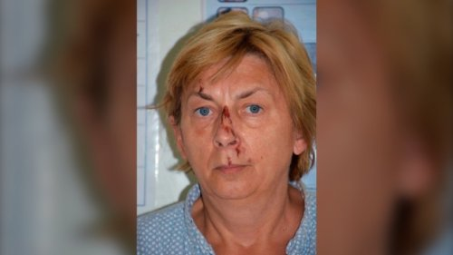 Croatia police trying to ID mystery woman with memory loss, found sitting on jagged rock