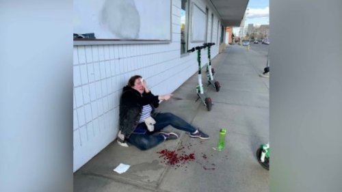 'Oh my god, the brakes': Edmonton woman injured in Lime scooter crash