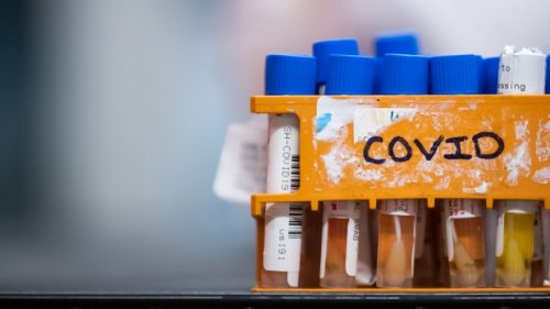 Record 494 COVID-19 cases reported in Manitoba Sunday