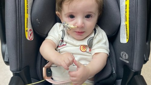 Toronto baby diagnosed with extremely rare condition seen in less than 250 people worldwide