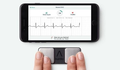 Tiny attachment gives iPhone better ECG than Apple Watch | Cult of Mac