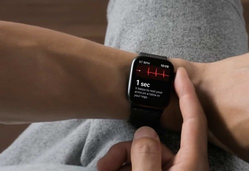 Huge study confirms Apple Watch ECG accurately detects AFib