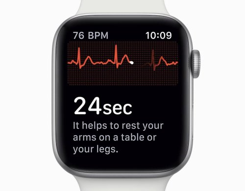Apple Watch ECG on its way to Australia after government approval | Cult of Mac
