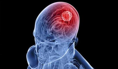Nöral terapi, kronik hastalıkların oluşmasını engelliyor