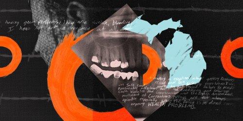 'I Have No Teeth': Michigan Prisoners Say Long Wait to See Dentist Is Inhumane