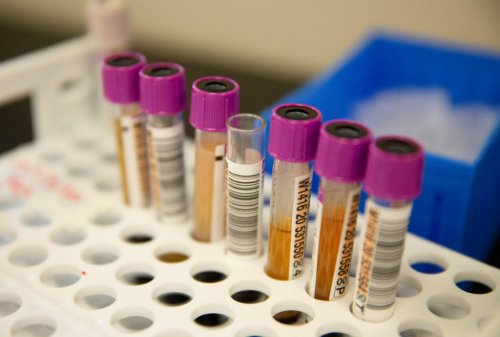 Why you shouldn't get a COVID antibody test after a vaccine