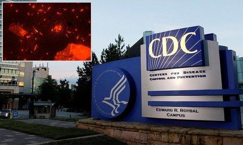 Contaminated 'bone repair product' linked to rare TB outbreak