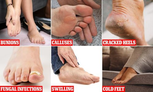 What do YOUR feet say about your health?