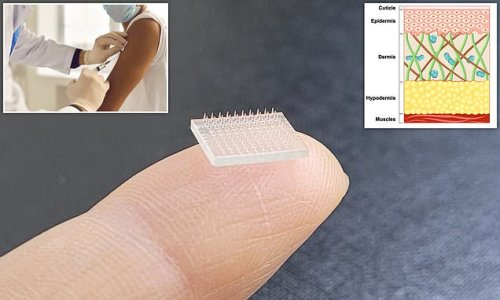 Scientists develop a 3D-printed microneedle vaccine patch