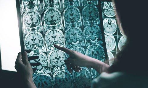 New treatment stops progression of Alzheimer's in monkey brains