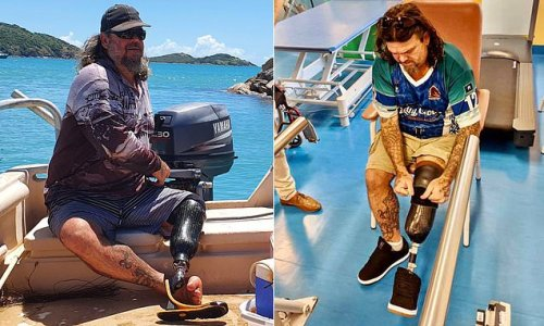 Man who split his foot in half from toe to ankle recalls the moment