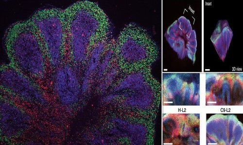 Lab-grown 'mini brains' developed from motor neurone patients