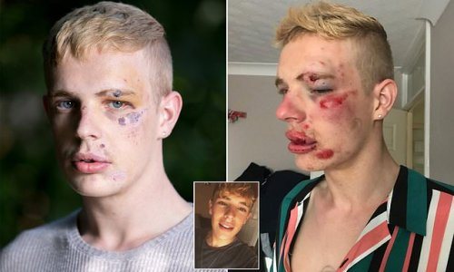 Gay man, 24, says he is 'disgusted' after attacker spared jail
