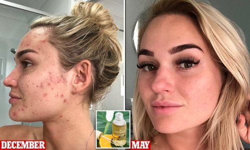 Aussie brand sells miracle oil that rapidly clears scars and acne