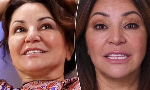 Big Brother's Mary reveals her $48,000 dental transformation