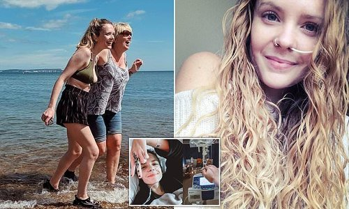 The chef who will NEVER eat again debilitating Ehlers-Danlos syndrome