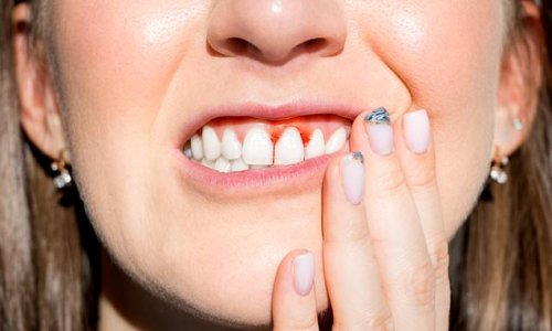 Brushing your teeth could help to prevent DEMENTIA, study claims