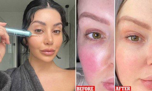 Aussie skincare brand launches eye cream that blurs lines & crows feet