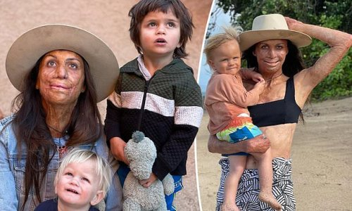 Turia Pitt reveals how she explains her injuries to her young son