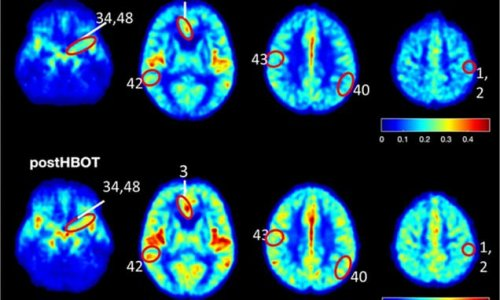 Australian study finds drugs could help treat Alzheimer's