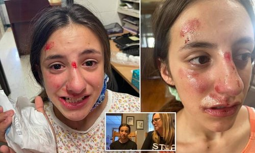 Girl, 13, who was body-slammed says she's been bullied for months