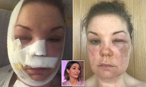 Mum is hospitalised with burns after attempting TV hack to poach eggs
