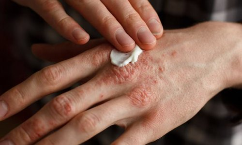 Latest remedy for eczema - rub bacteria on to your skin!
