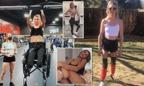 Personal trainer has BOTH legs amputated after snowboarding crash